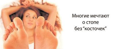 Воспаление косточки на ноге и отек поверхности стопы у женщин