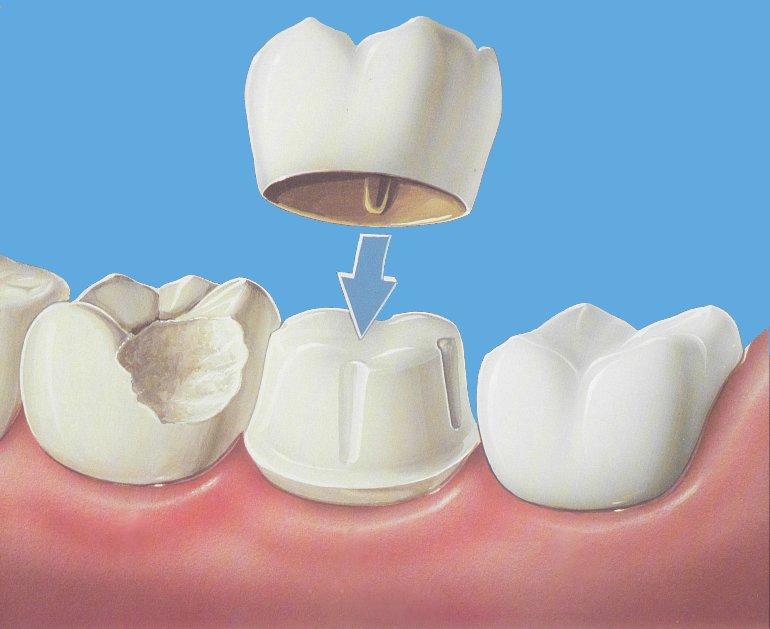 Что лучше пломба или коронка на зуб