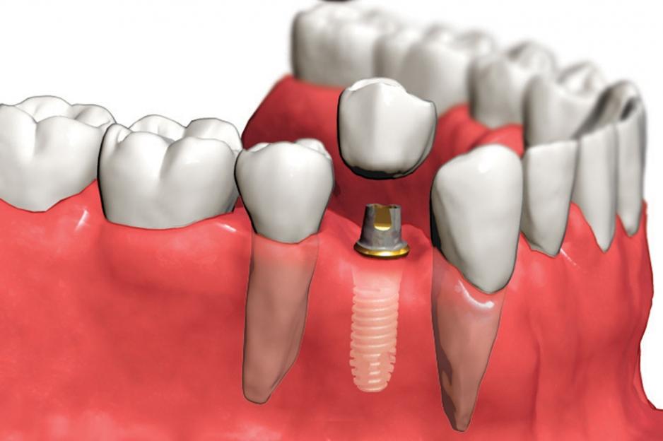 Продажа зубных имплантов