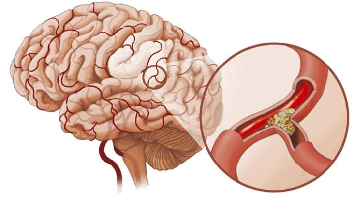 Схема лечения спазма сосудов головного мозга