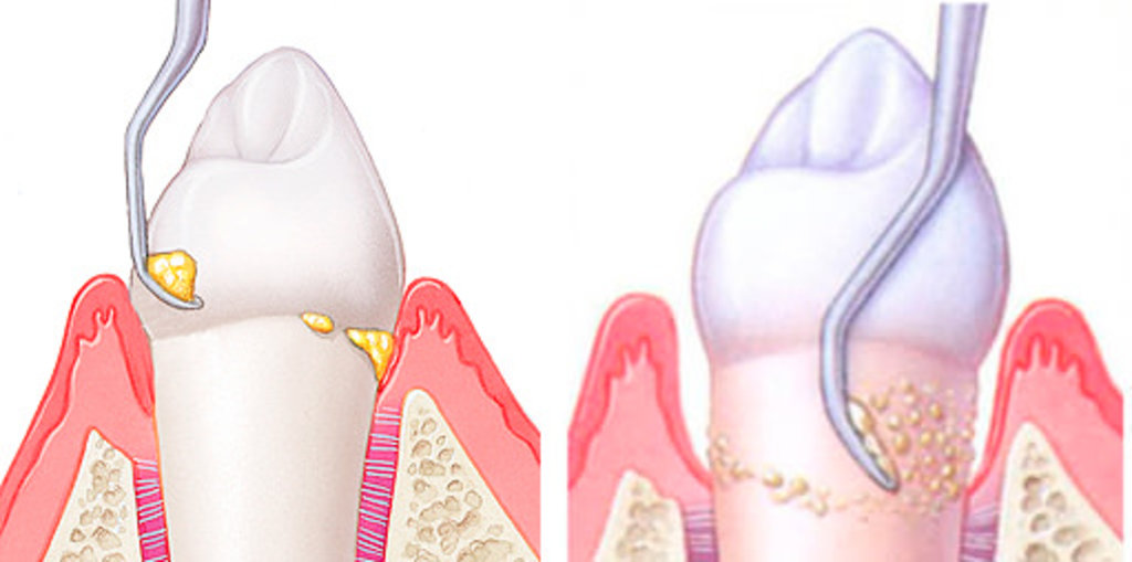 Как убрать налет и камень с зубов в домашних условиях