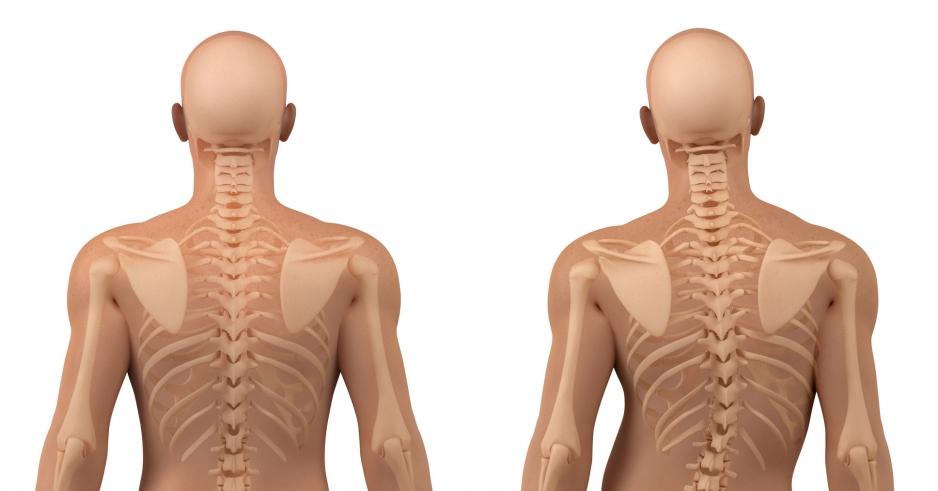 Лечение сколиоза с помощью остеопатии