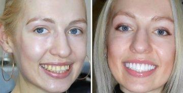 Причины реставрации зубов