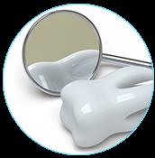 реставрации зубов в Череповце