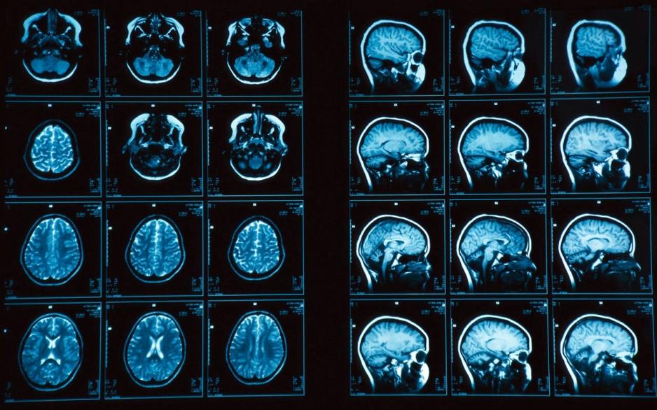 МРТ в Вологде. Сделать МРТ. МРТ головного мозга.