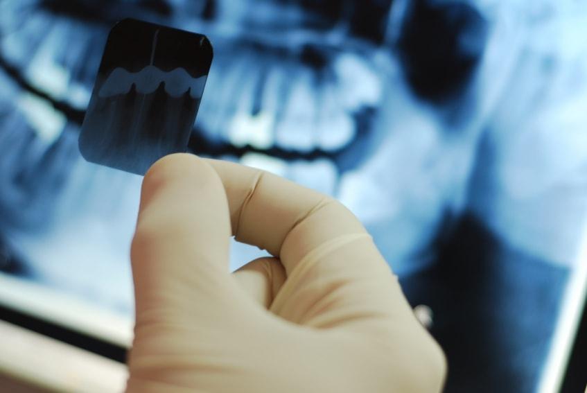 рентген зуба