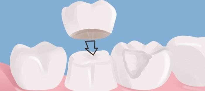 Череповец коронка на зуб