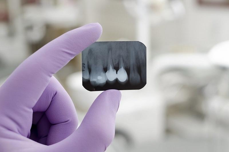 Рентген зубов в Череповце