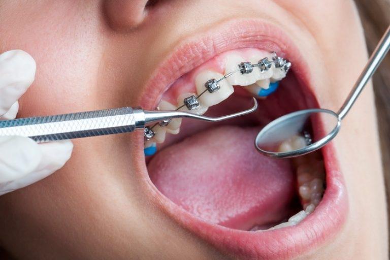 ортодонт