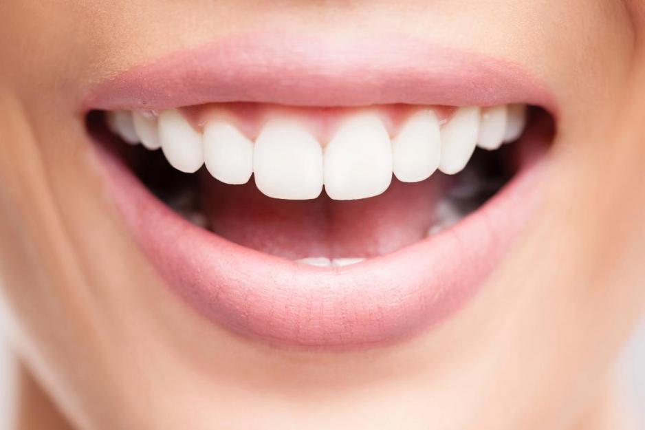 Реставрация зубов в Череповце
