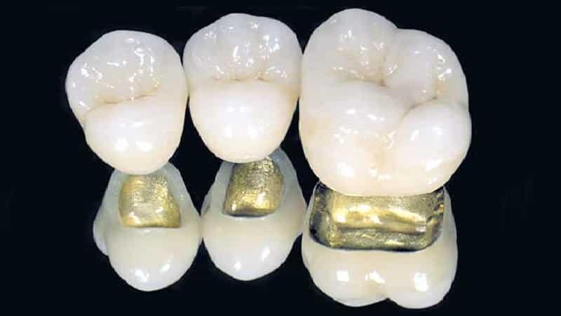 Металлокерамический протез