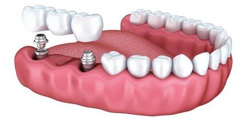 Несъёмное протезирование зубов в Череповце