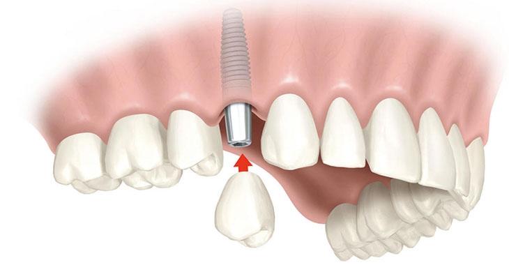 Где установить зубные импланты в Череповце