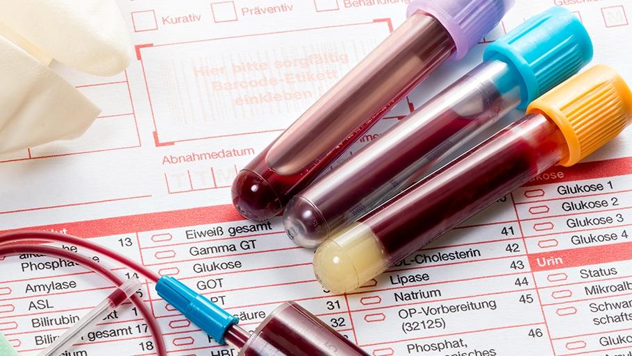 Анализ крови на коагулограмму в Череповце