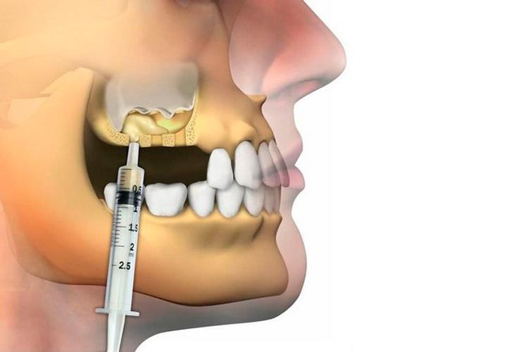 Синус-лифтинг в стоматологии Череповец
