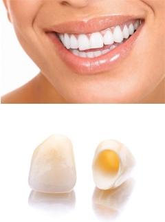Безметалловое протезирование зубов в Череповце