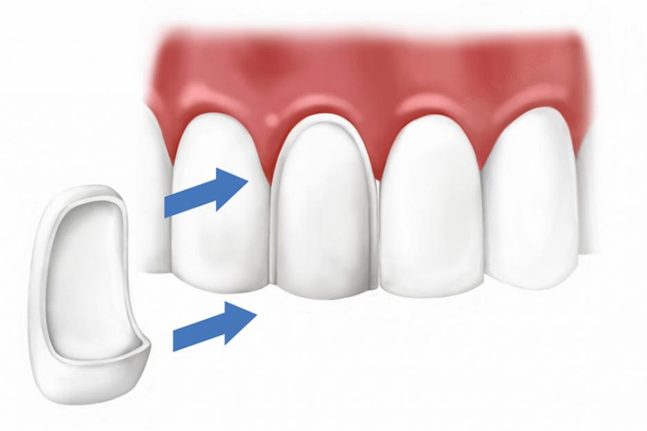 Установка виниров на зубы в Череповце