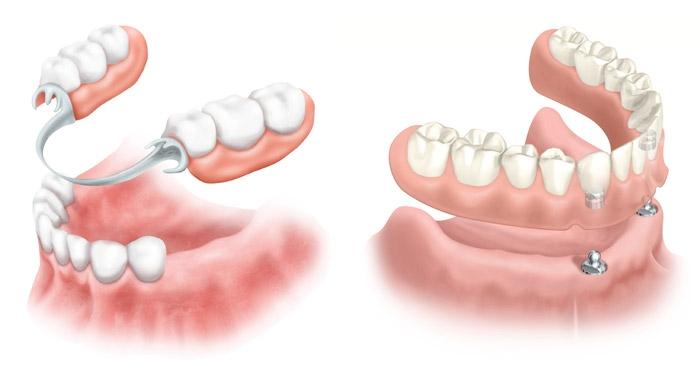 Съемное и несъемное протезирование зубов в Череповце