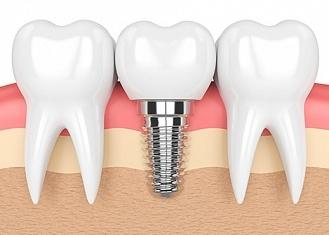 Где поставить зубные импланты в Череповце?