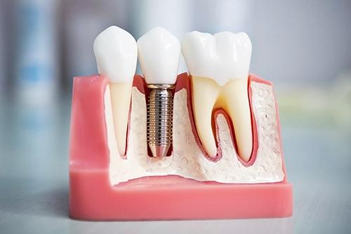 Протезирование зубов в стоматологии Династия в Череповце