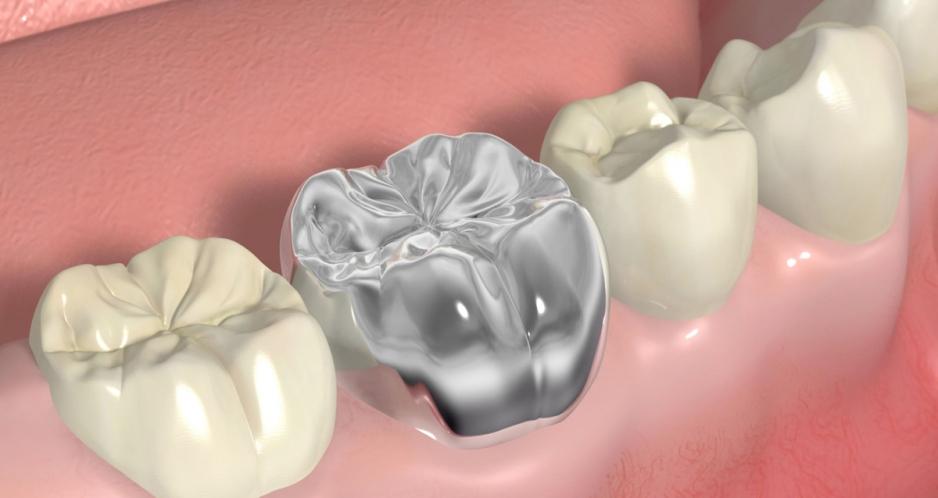 металлическая коронка на зуб