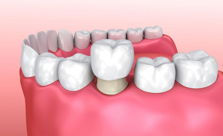 металло-керамическая коронка на зуб
