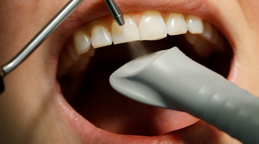 Песоструйная чистка зубов