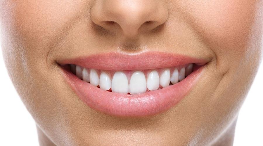 Пескоструйная очистка зубов