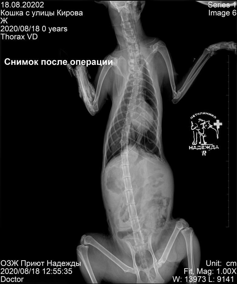 Рентгенологический снимок после проведенной операции
