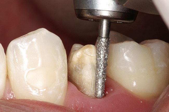 обтачивание зуба
