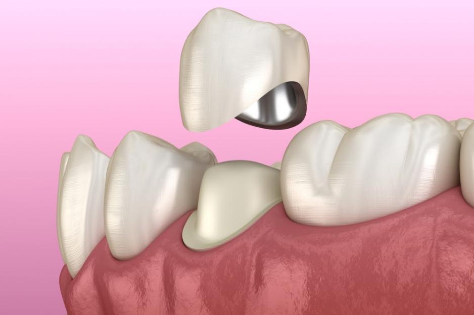 Металлокерамическая зубная коронка